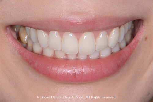 ガミースマイルが改善されて歯のサイズもバランスがいい