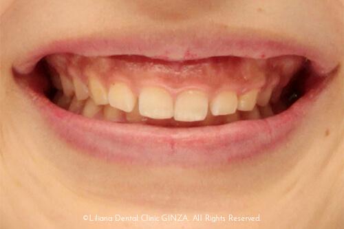 歯が小さく、歯ぐきが見える