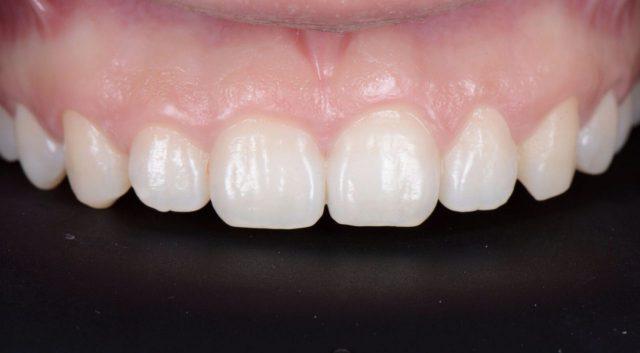 初診の前歯
