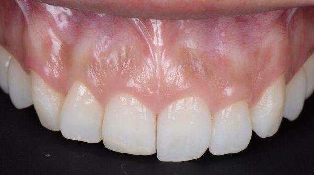 歯の見え方が少ない為 笑顔が映えないのが悩み