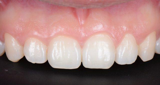 初診時 前歯